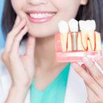 口腔インプラント専門医なら安心?普通の歯科医師との違...